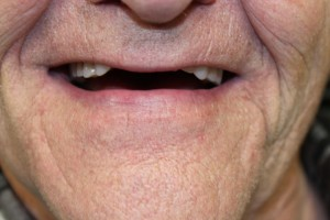 Patient needing a new denture (before)