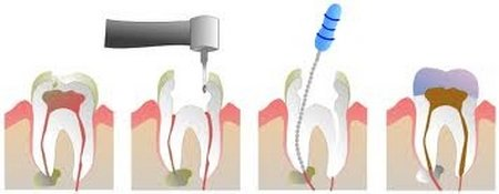RootCanal_steps1