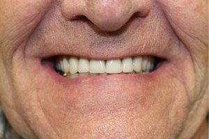 New dentures made at Altman Dental