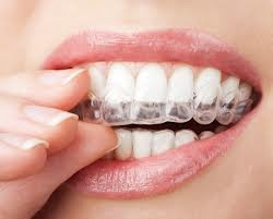 Custom bleaching trays are filled with material and are worn for only 30 minutes each day over 8-14 days for maximum benefit
