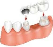 A bridge utilizes your own teeth as anchors, while covering the spaces where teeth have been removed. This is different from a denture, in that the structure built fits on top of existing teeth.