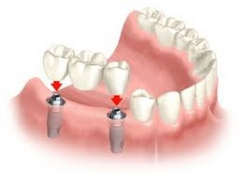 Dental Implants at Altman Dental