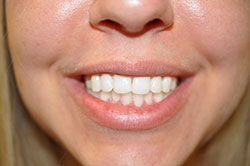 Actual Client after Whitening