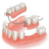 Partial denture, removable, use of metal bridge