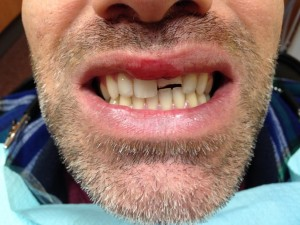 broken tooth to be repaired with a crown at Altman Dental