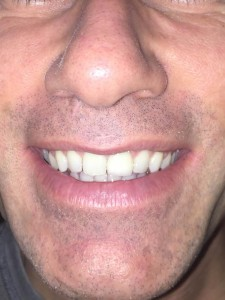 Restorative dental crown for broken tooth at Altman Dental