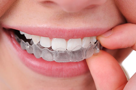Invisalign at Altman Dental