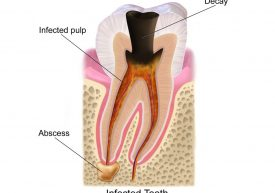 What Is An Dental Abscess Altman Dental